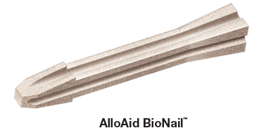 AlloAid BioNail for bunion osteotomy