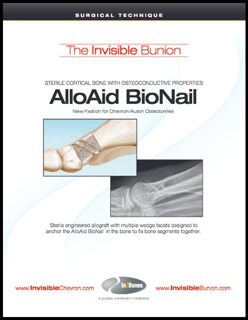 AlloAid BioNail - Bunion Correction